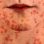 Two Utah County residents have reported having measles. (Photo courtesy Utah County Department of Health)